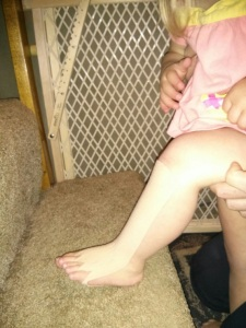 Tape that is stretched over the Tibialis Anterior muscle helps this 2 year old with Down Syndrome lift her toes in order to step up stairs.